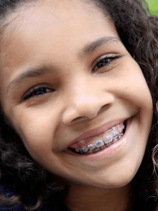 Orthodontic-treatment-kids